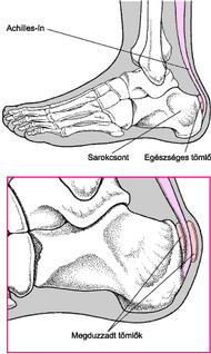 csípő coxarthrosis hogyan kell kezelni közös kezelés ortopéd