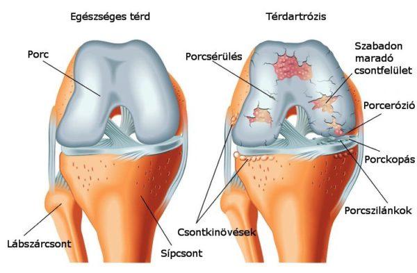 akut fájdalom a térdízületben artrózissal ízületek blokádja artrózissal