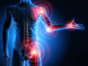 ízületi gyulladás a lábak kezelőtablettáiban a vállízület kötőelemeinek gyulladása