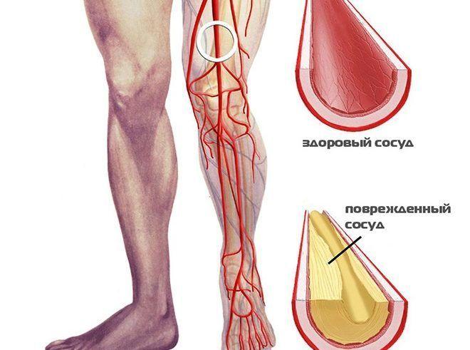 ami nem lehetséges a csípőízület artritiszével térdízület kezelési komplex gyakorlata