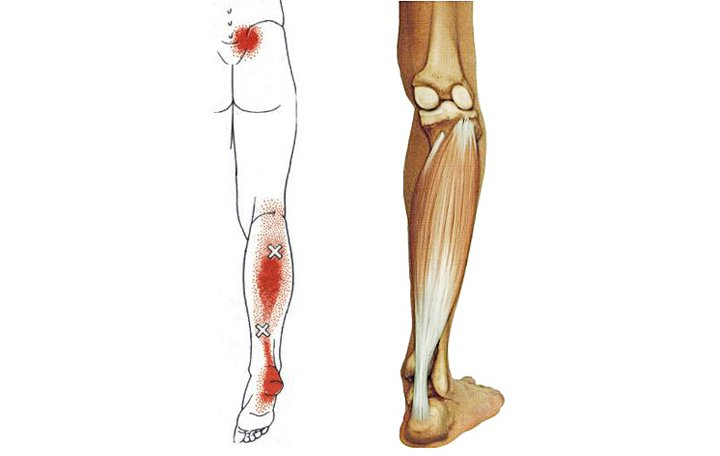 artrózis kezelő öv