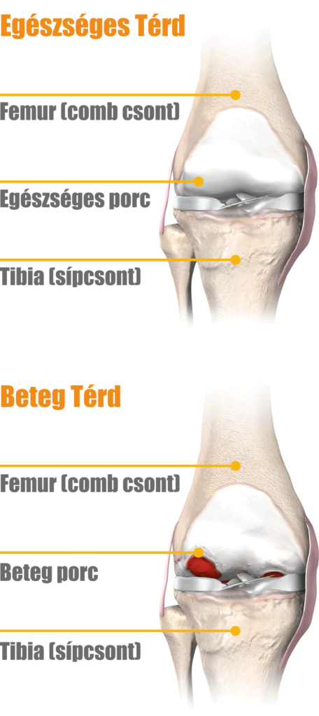 lábgörcsök ízületi fájdalom