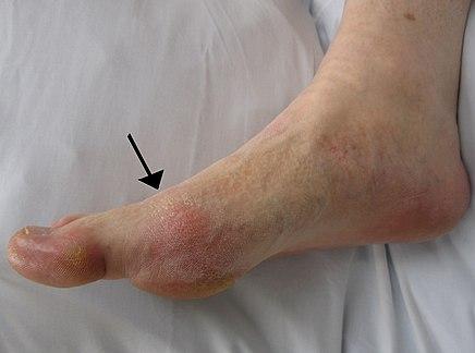 felbukkant egy lábán, amelynek súlyos fájdalma van a bokaízületben többhatású glükózamin-kondroitin