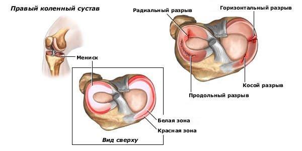a térdízület kezelésének keresztezett ligamentumainak sérülése fórum csípőízületi gyulladás 1. fokú kezelése