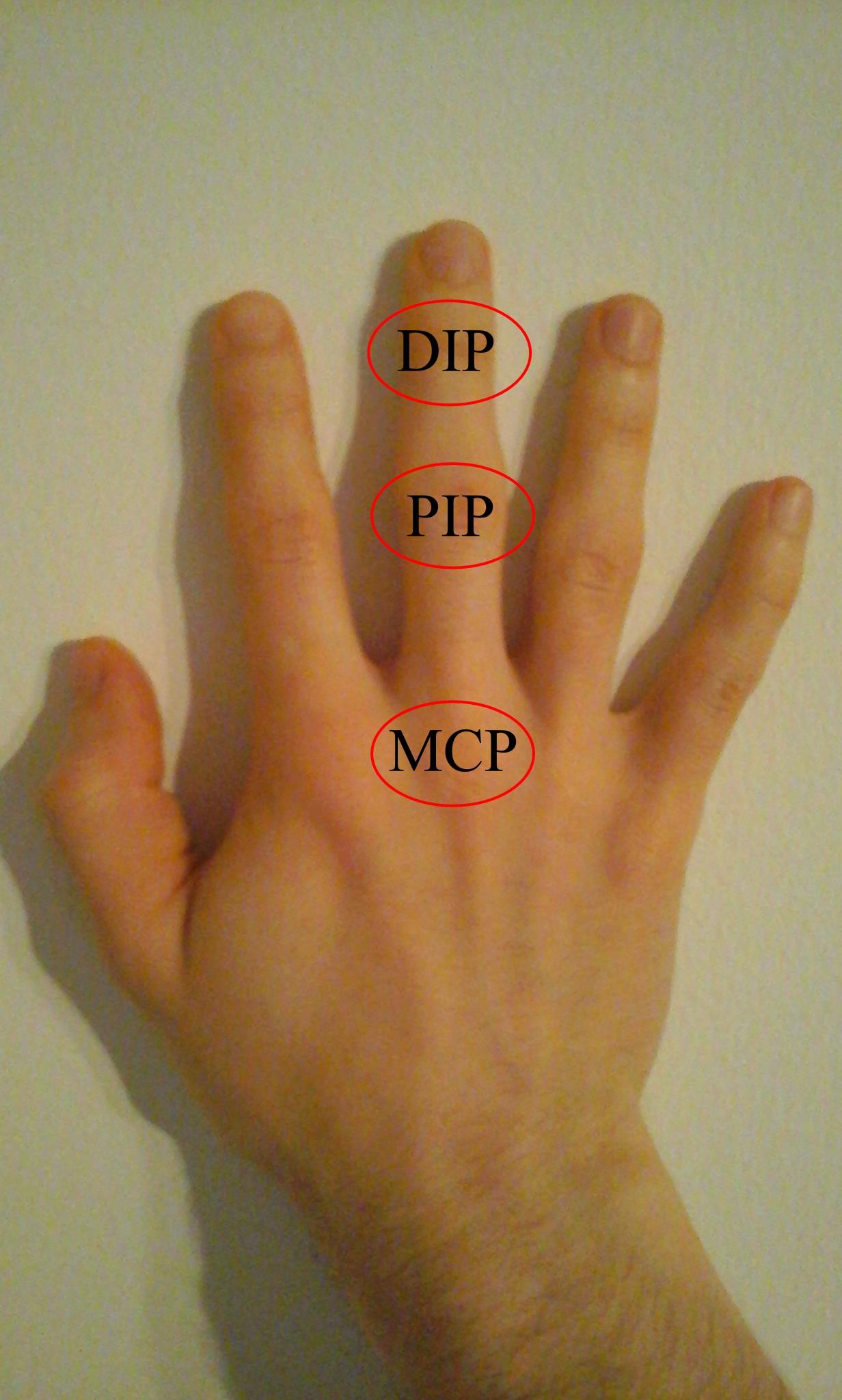 Mindent a kezek osteoarthritiséről: tünetek, hatékony kezelés - Homorú-domború lencse July