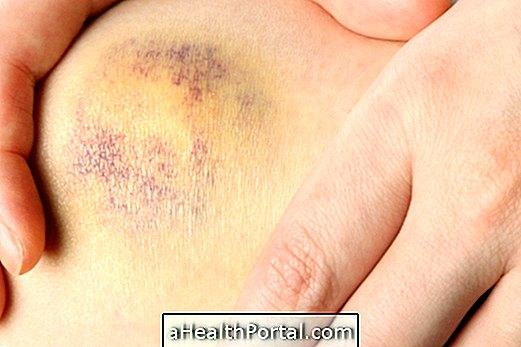 a térd artrózisának sárkezelése a könyök szalagjai betegségei