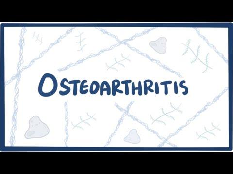 osteoarthritis kezelése és fájdalomcsillapítás