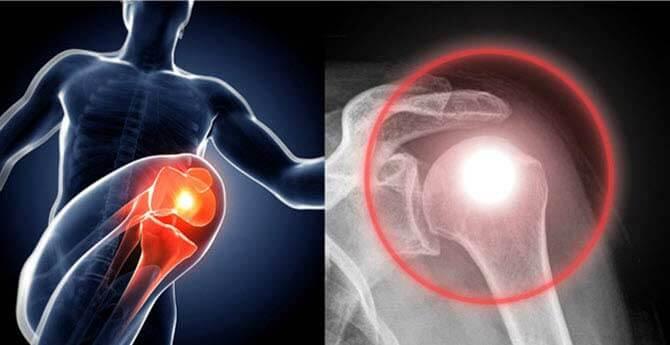 hamis ízületi tünetek kezelése boka duzzanat sérülés nélkül
