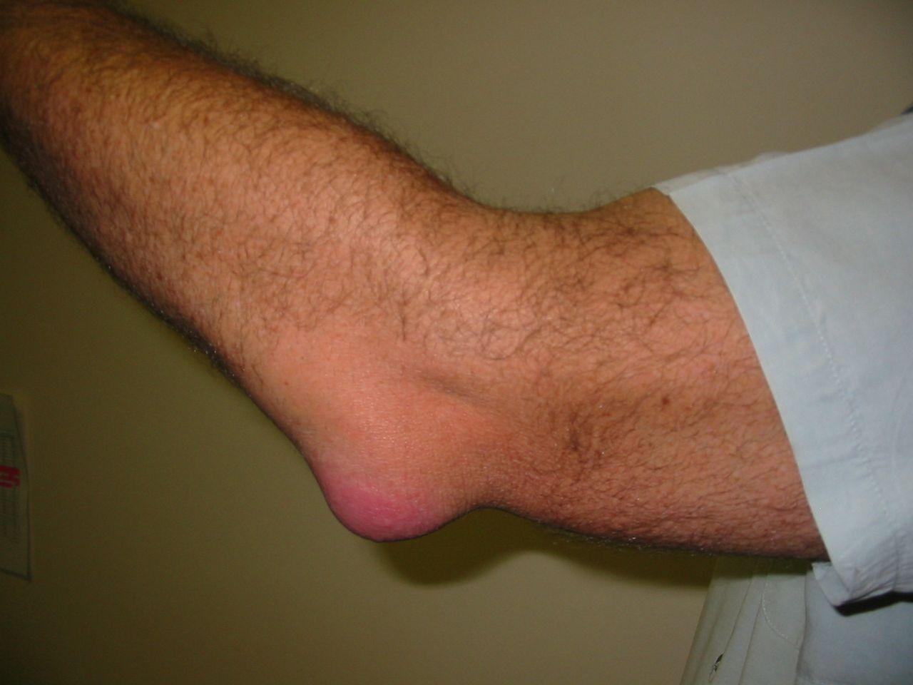 ízületi ízületi betegség bursitis futballista boka sérülések