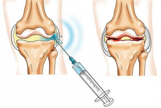 boka artropathia kezelés