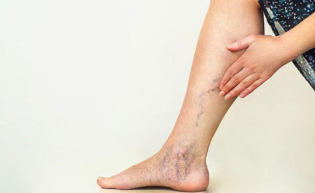 boka fájdalom tünetei himalája kenőcs ízületi fájdalmak kezelésére