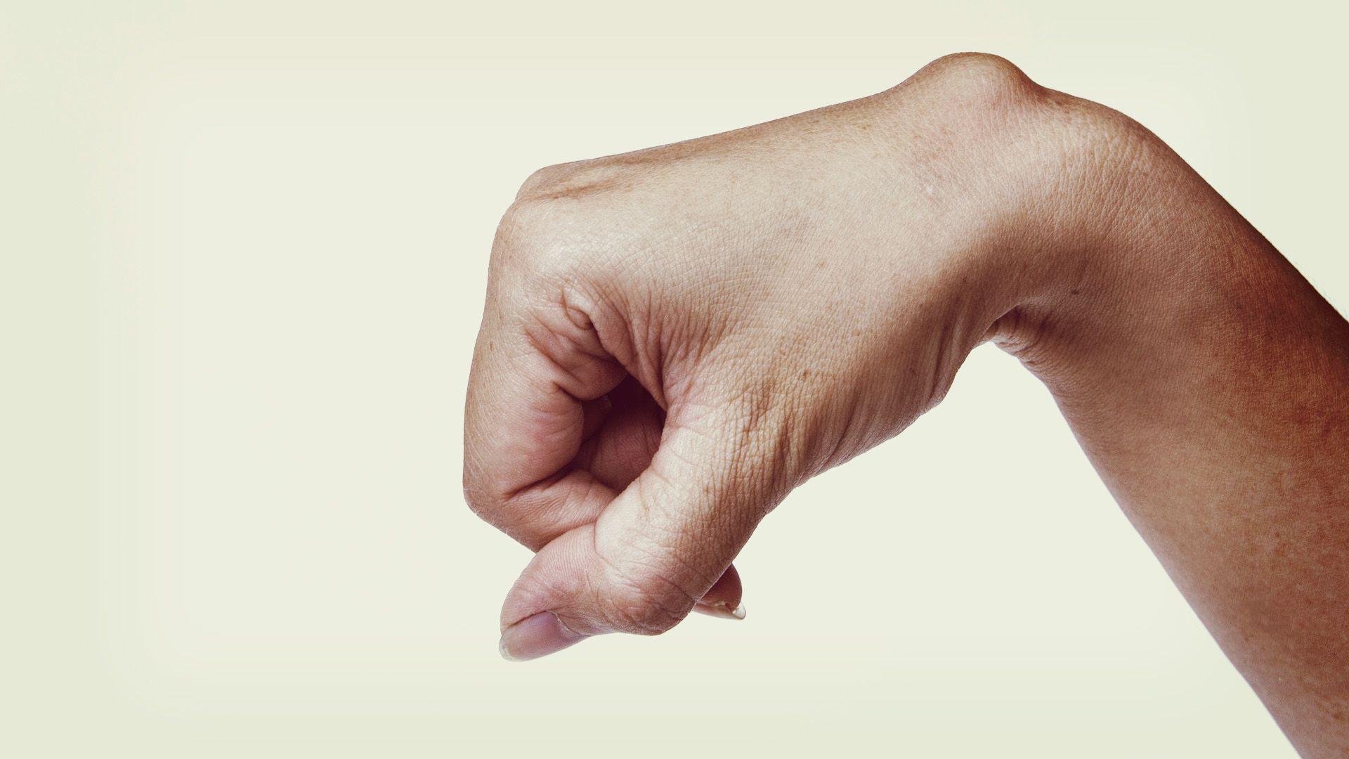natrol-glükozamin-kondroitin értékelések keserű izületi fájdalom