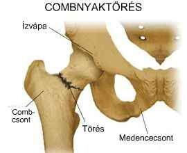 csípőtörés betegség kezelése