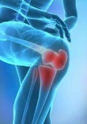 kórtörténet térd osteoarthritis távolítsa el a csípőízület fájdalmát