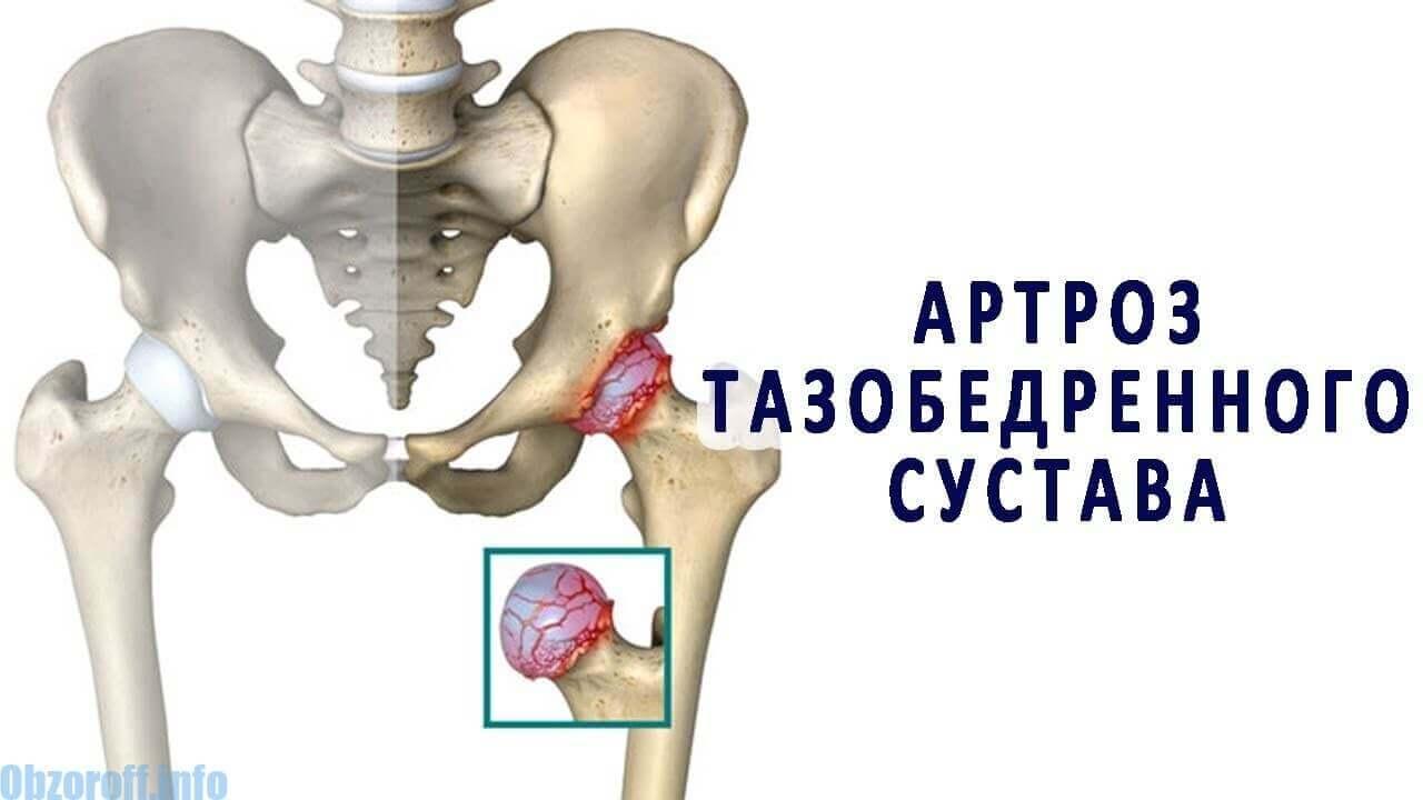 az ízületek ízületi fájdalmat okoznak a csípőízületek coxarthrosisával térd fáj