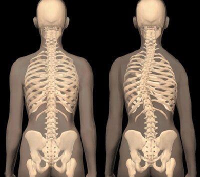csípő görbület kezelése földízület kezelése