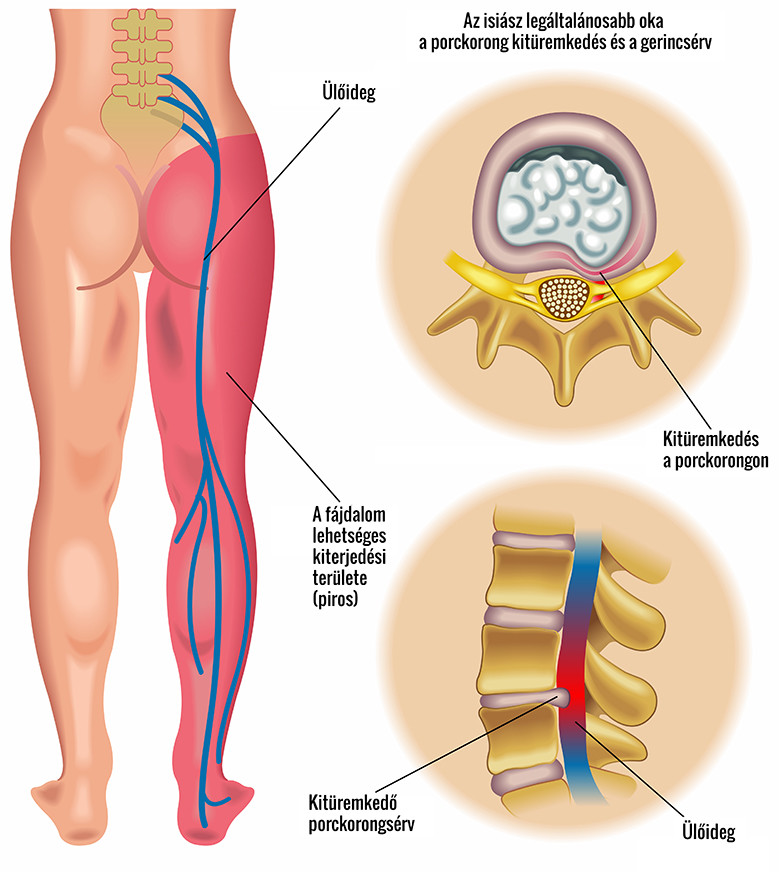 térdizom-sprain kezelés stroke ízületek kezelése