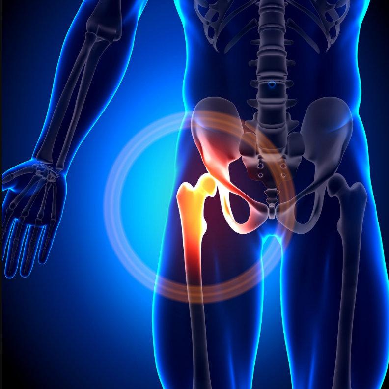 csípőízület betegségeinek kezelése a jobb kéz ízületei fájnak