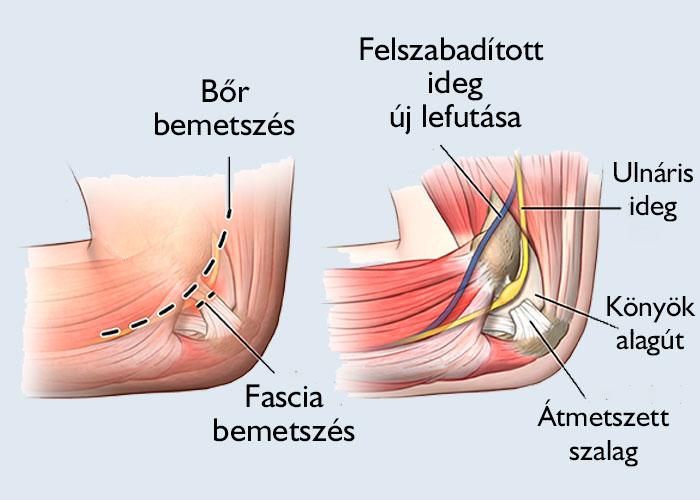 térd porckopás jelei hogyan lehet enyhíteni a súlyos ízületi fájdalmakat