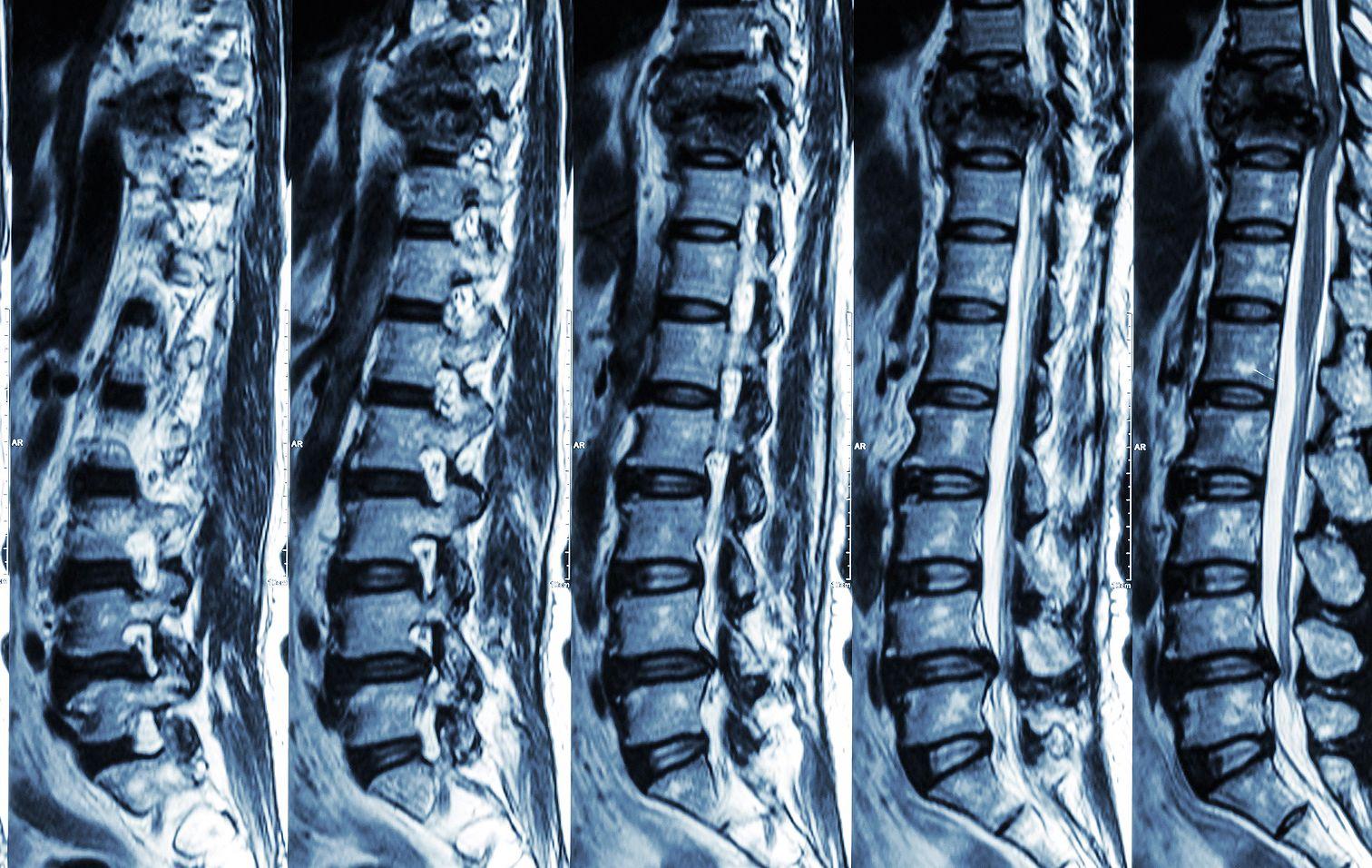 csípő fájdalom és kopogás