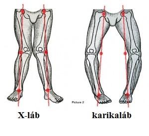 pilates ízületi fájdalom otthon kezeljük a térdízületek fájdalmait