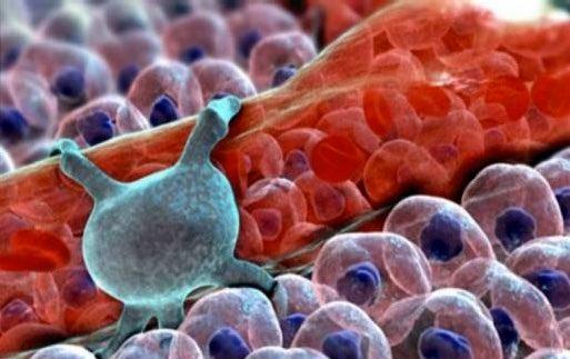 Az artrózis a szegedi StefánaiKlinikán | Stefánia Klinika