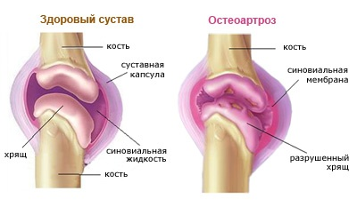deformáló artrózis az egyik nagy ízületben