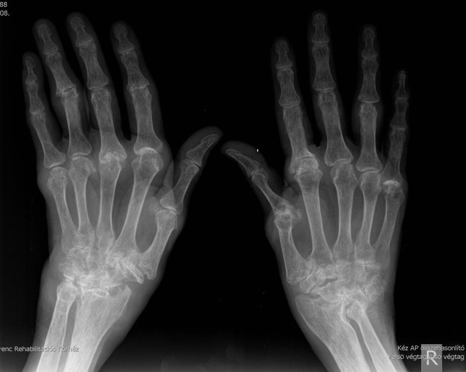 A kezeket is deformálja a reumás ízületi gyulladás - HáziPatika
