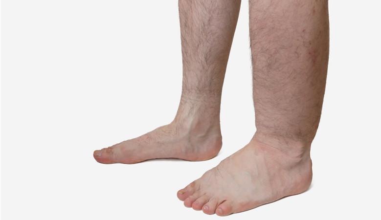 a lábak duzzanata térd artrózissal