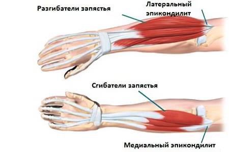 készítmények a nagy lábujj artritiszére a vállízület fájdalma okoz