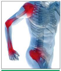 artrózisos kezeléssel
