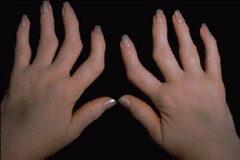 előrehaladott artritisz hogyan kell kezelni ízületek javításának módjai
