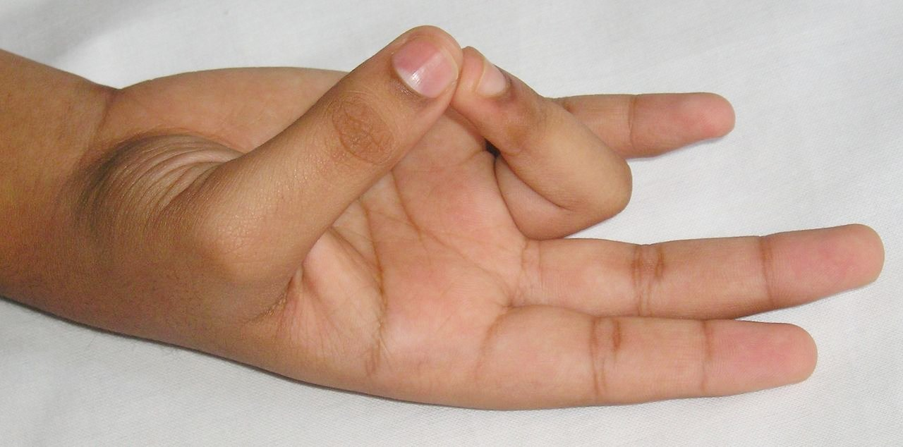 iliotibial tract friction syndrome izületi betegségek gyógyítása