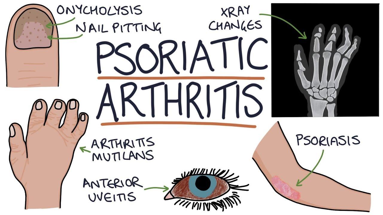 Achilles-ín fájdalma találja artrózis kezelést