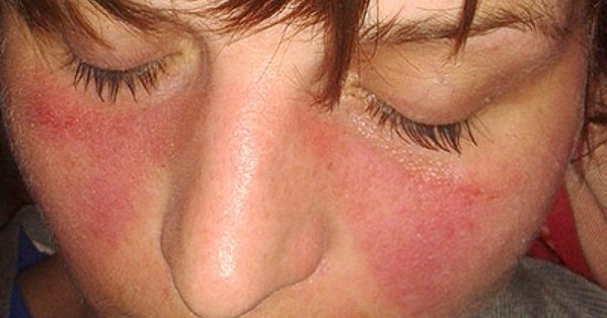 autoimmun kötőszöveti gyulladás