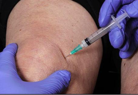 ízületi kondroprotektív kezelés krém ízületi fájdalmakhoz