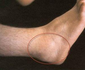 a bokaízület ízületi gyulladása. kezelés ízületi fájdalmakhoz hasznos termékek