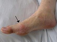 kenőcsök ízületi gyulladáshoz és a lábujjak ízületi gyulladásaihoz