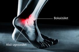 bokaízületek osteochondrozisának kezelése