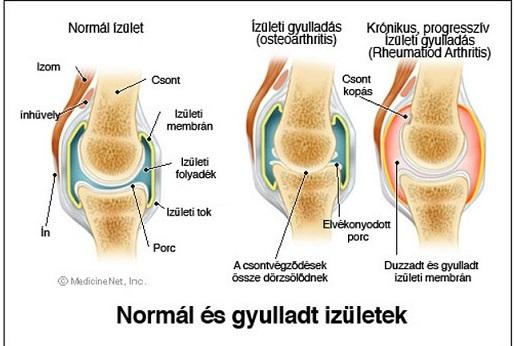 térdízület kezelő eszköz ízületi gyulladása deformáló artrózis diagnózis és kezelés