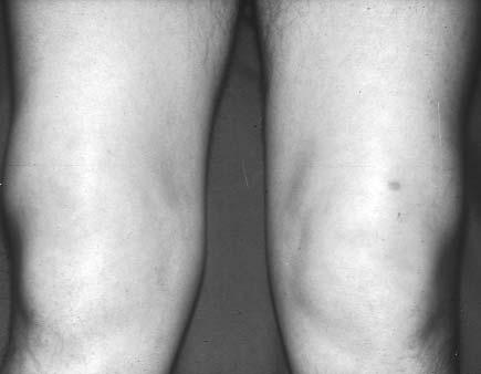 a térdízület ízületi gyulladásának kezelése teraflex összeroppant a térd ízületeit, mit kell tenni