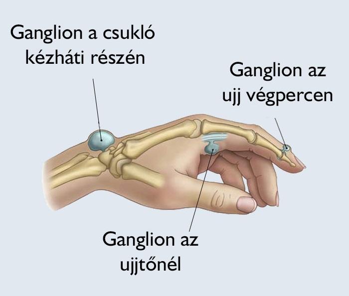 kisdunaetterem.hu -Traumatológia, kézsebészet