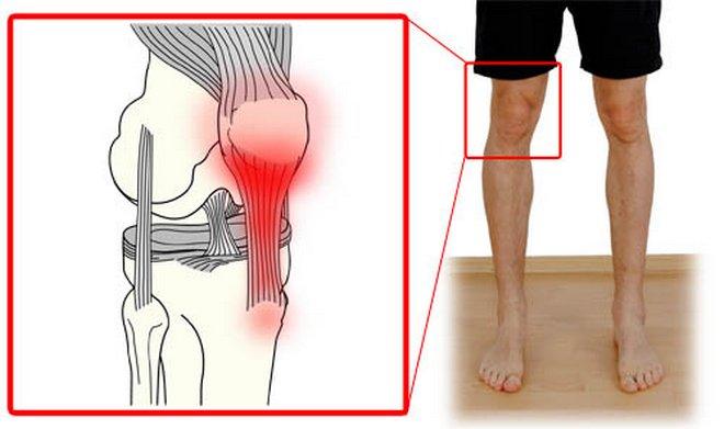 fájdalom a könyök ízület ligamentumában