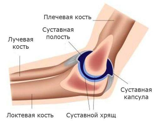 Fájdalmak a könyökben a hajlítás és kiterjesztés során, lehetséges megbetegedések és kezelésük