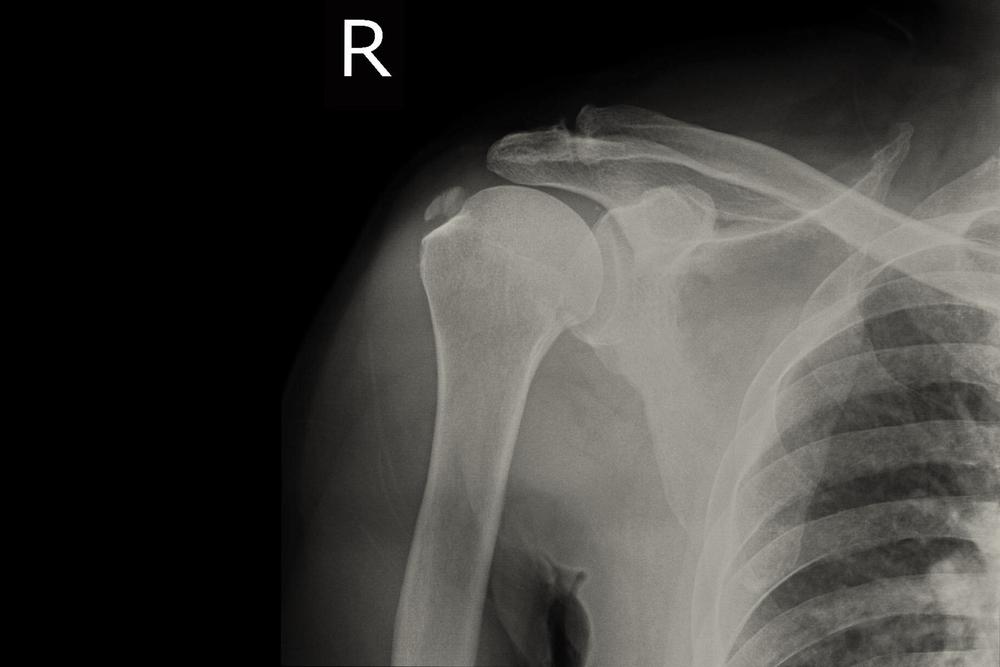 fájdalom a vállízület rehabilitációja során az összes ízület második fokozatú artrózisa hogyan kell kezelni
