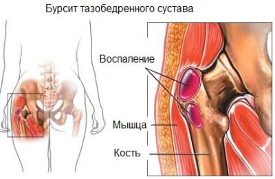 égő fájdalom a kézízületben súlyos térdfájdalom, mint hogyan lehet enyhíteni