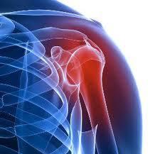 hatékony kenőcs a vállízületek fájdalmáért