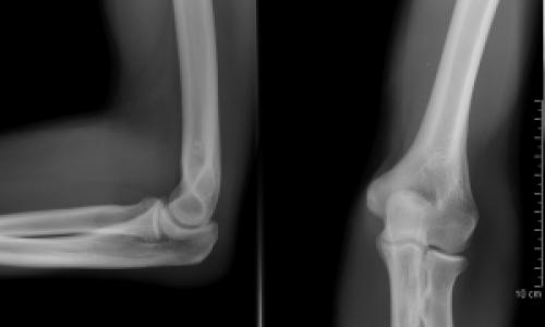 Fájdalom a vállízületben: tünetek, diagnózis és kezelés - Köszvény