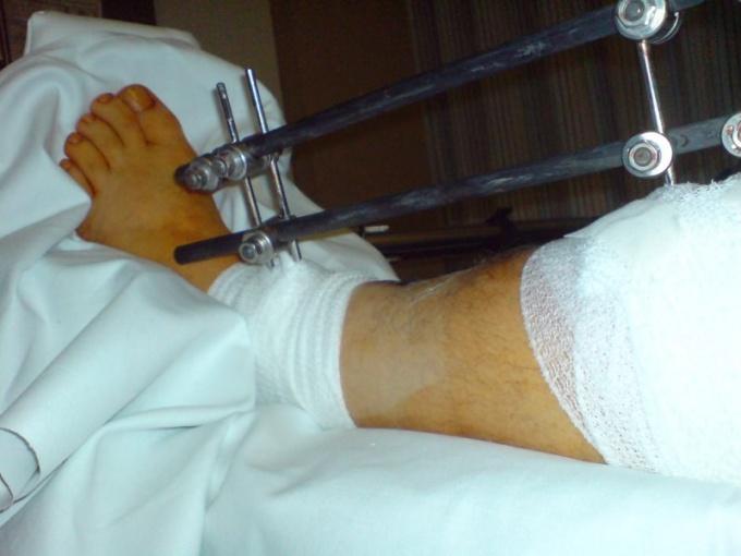 hogyan kezeljük a lábak és a karok ízületeit