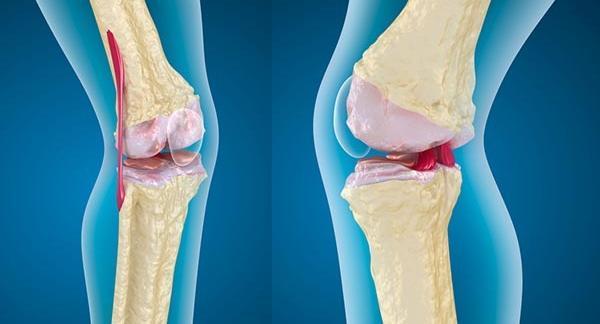 hogyan lehet gyógyítani a térdízület artrózisát és ízületi gyulladását